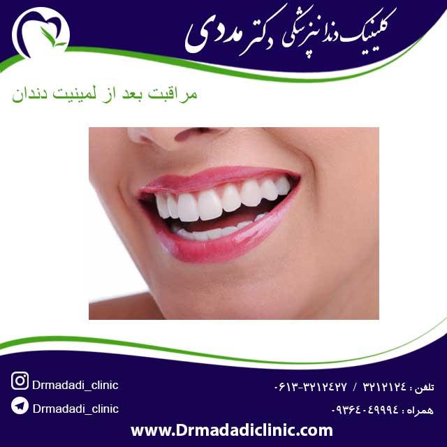 مراقبت بعد از لمینیت دندان