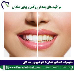 مراقبت های بعد از روکش زیبایی دندان