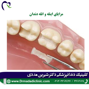 مزایای اینله و انله دندان