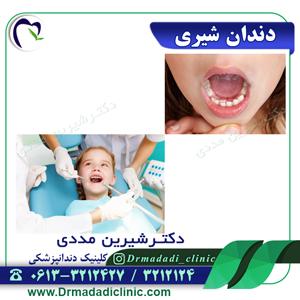 دندان شیری
