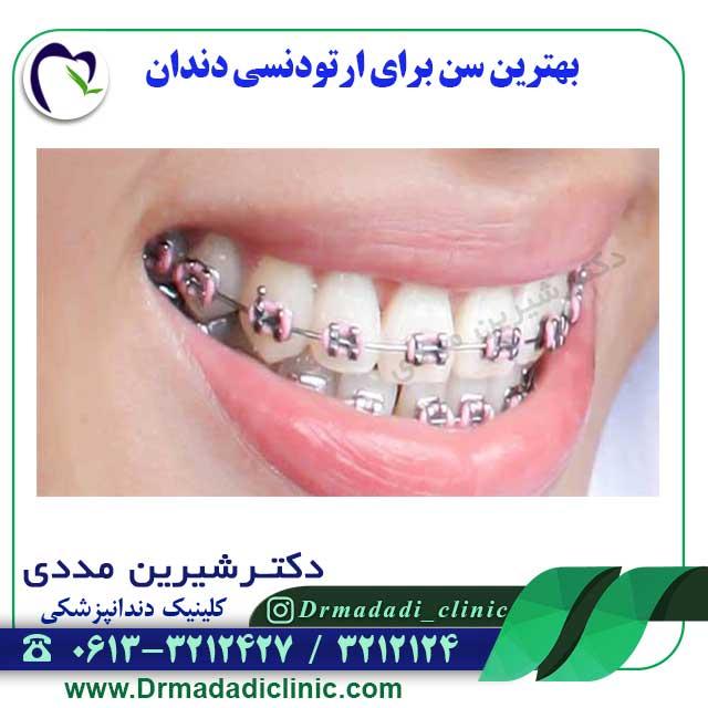 بهترین-سن-برای-ارتودنسی-دندان