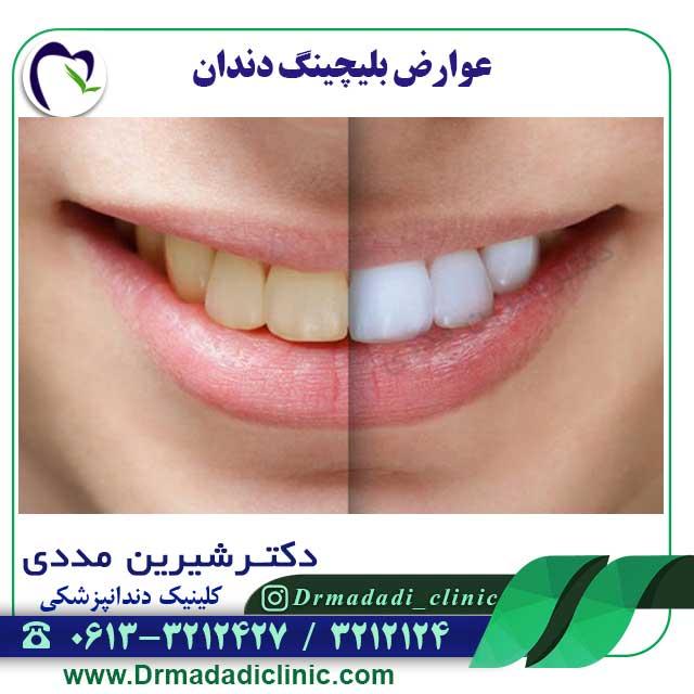 عوارض-بلیچینگ-دندان