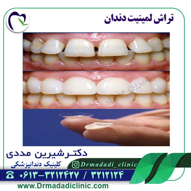لمینیت-دندان