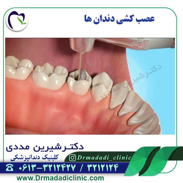 عصب-کشی-دندان-ها