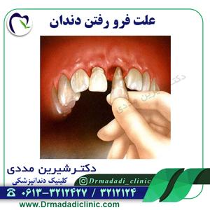 علت فرو رفتن دندان