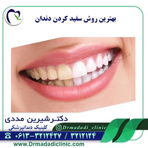 بهترین روش سفید کردن دندان