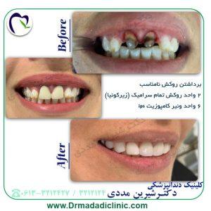 دندانپزشک زیبایی در اهواز