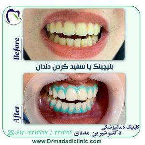 بلیچینگ دندان راهی برای سفیدی دندانها