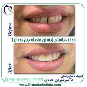 بهترین روش بستن فاصله دندان