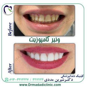 کامپوزیت دندان در اهواز