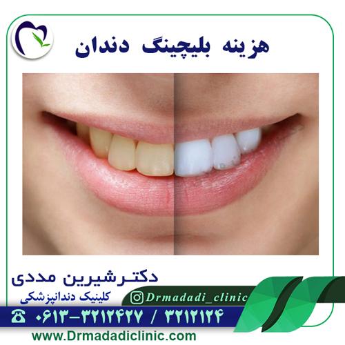 هزینه بلیچینگ دندان